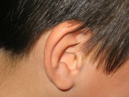 El uso de peróxido de hidrógeno para la eliminación de la cera del oído